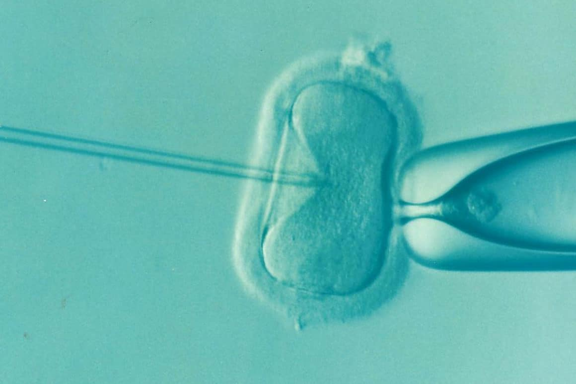 The Step-by-Step Guide to Fertility Treatment and What You Can Expect