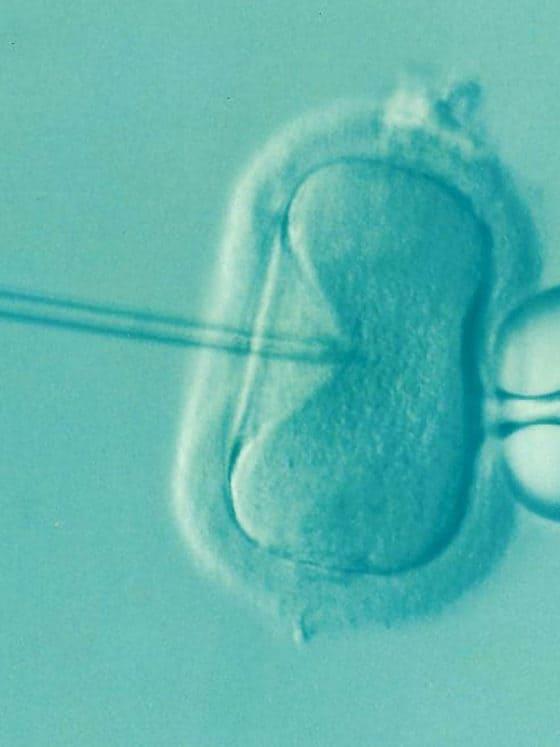 IVF Treatment