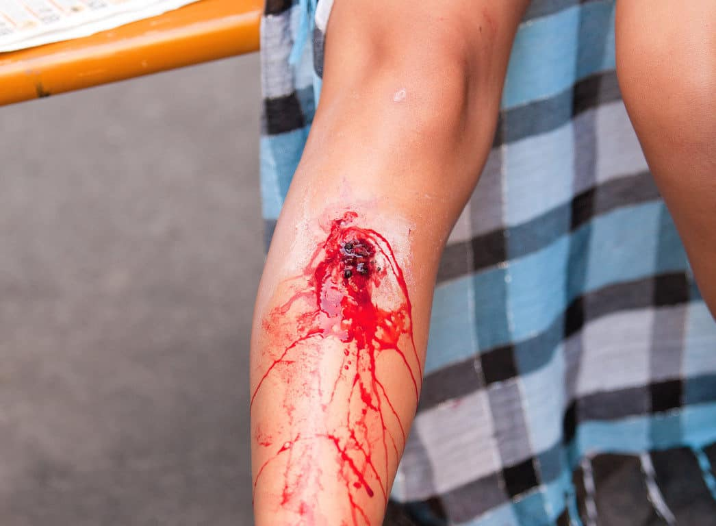 Slips and trips injuries