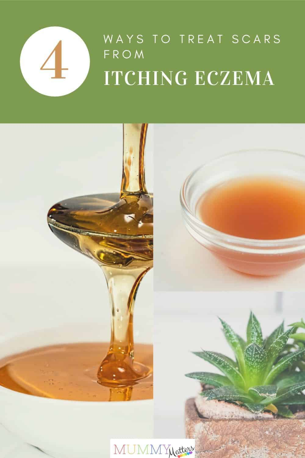 Eczema is a condition of the skin that causes irritated, parched, and scaly skin. In this post, we discuss tips to treat scars from itching in a natural way.