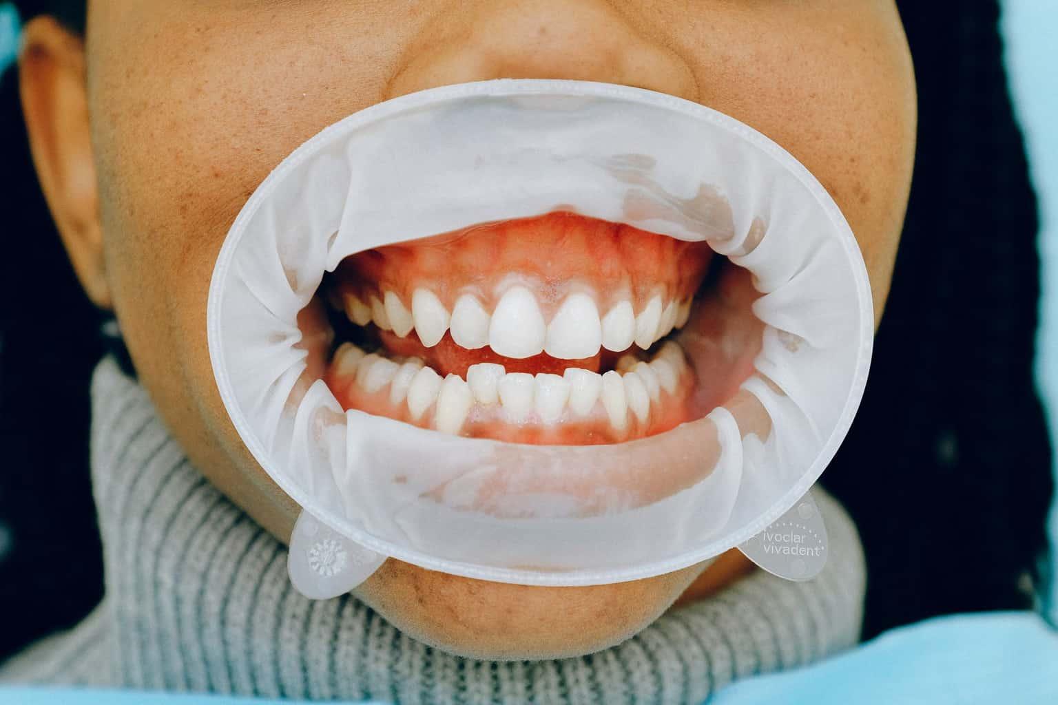 Regular dental cleaning