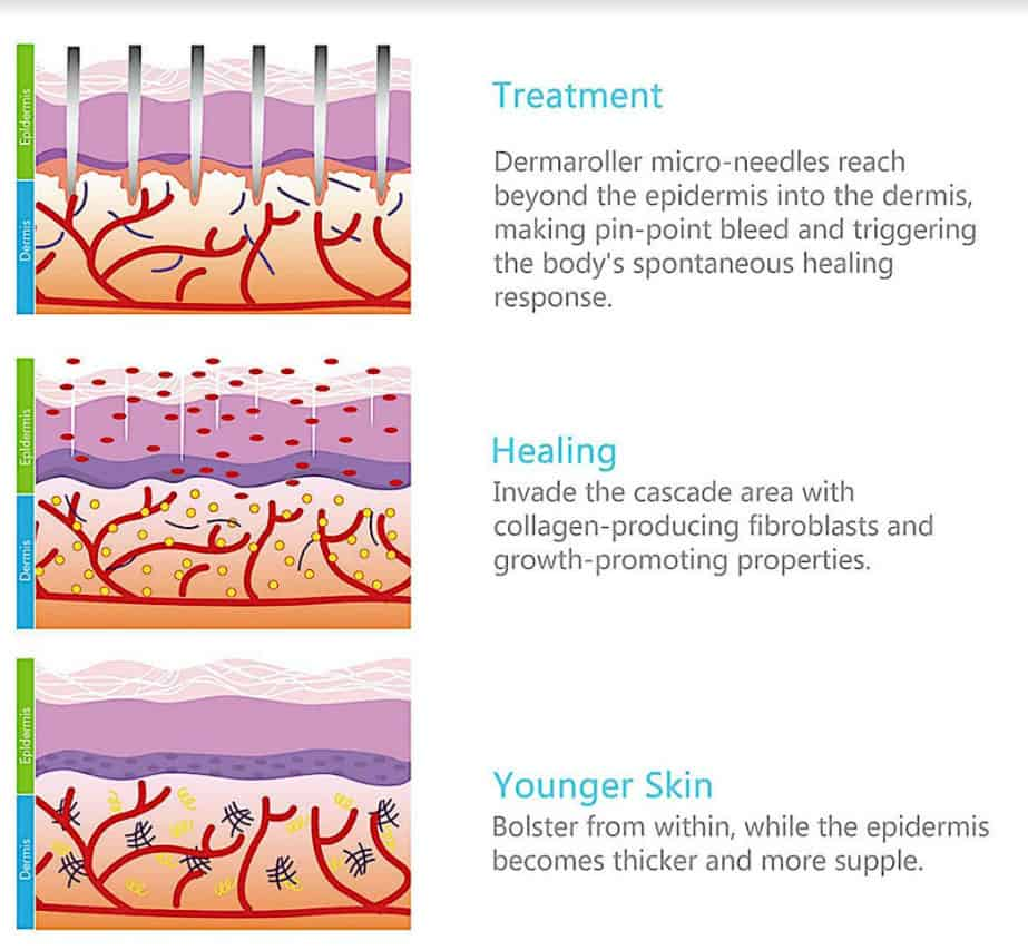 How does a Derma Roller work?