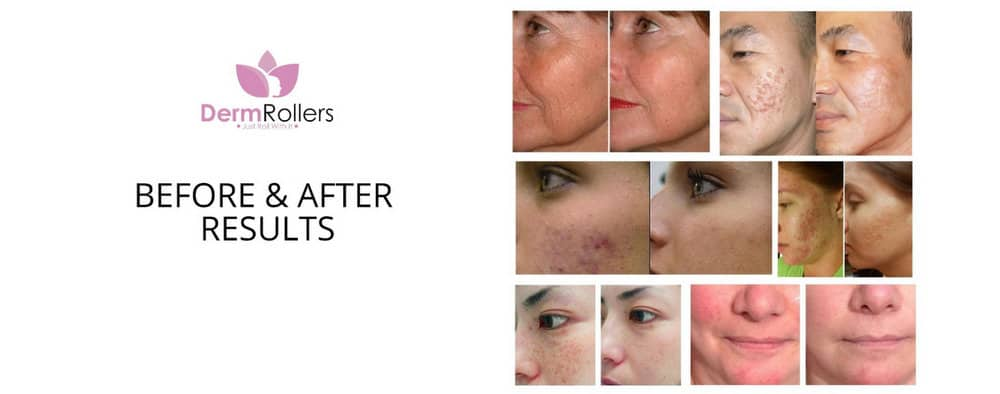 DermRollers before and after