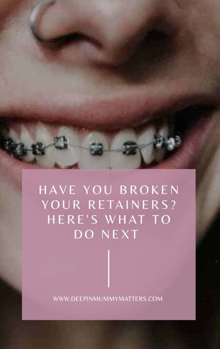 Have You Broken Your Retainers? Here's What to Do Next 1