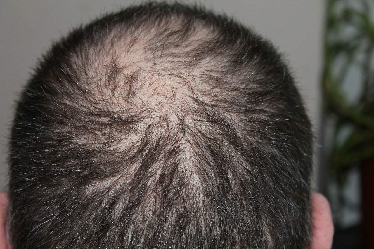 Possible Reasons Why You Are Losing Your Hair