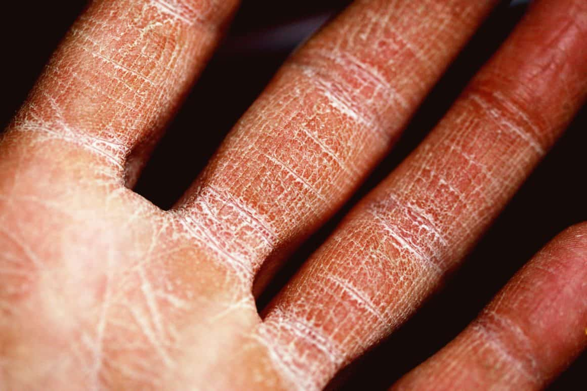 How to Treat Eczema Through Changing Your Diet