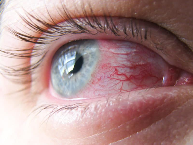 Top 3 Eye Problems You Can Avoid