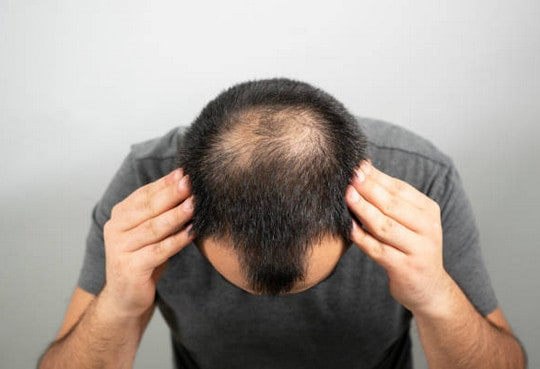 Norwood Scale: Popular Stages of Hair Loss in Men 1