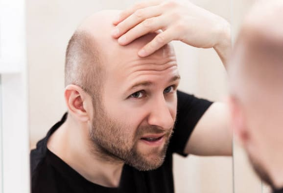 Norwood Scale: Popular Stages of Hair Loss in Men 2