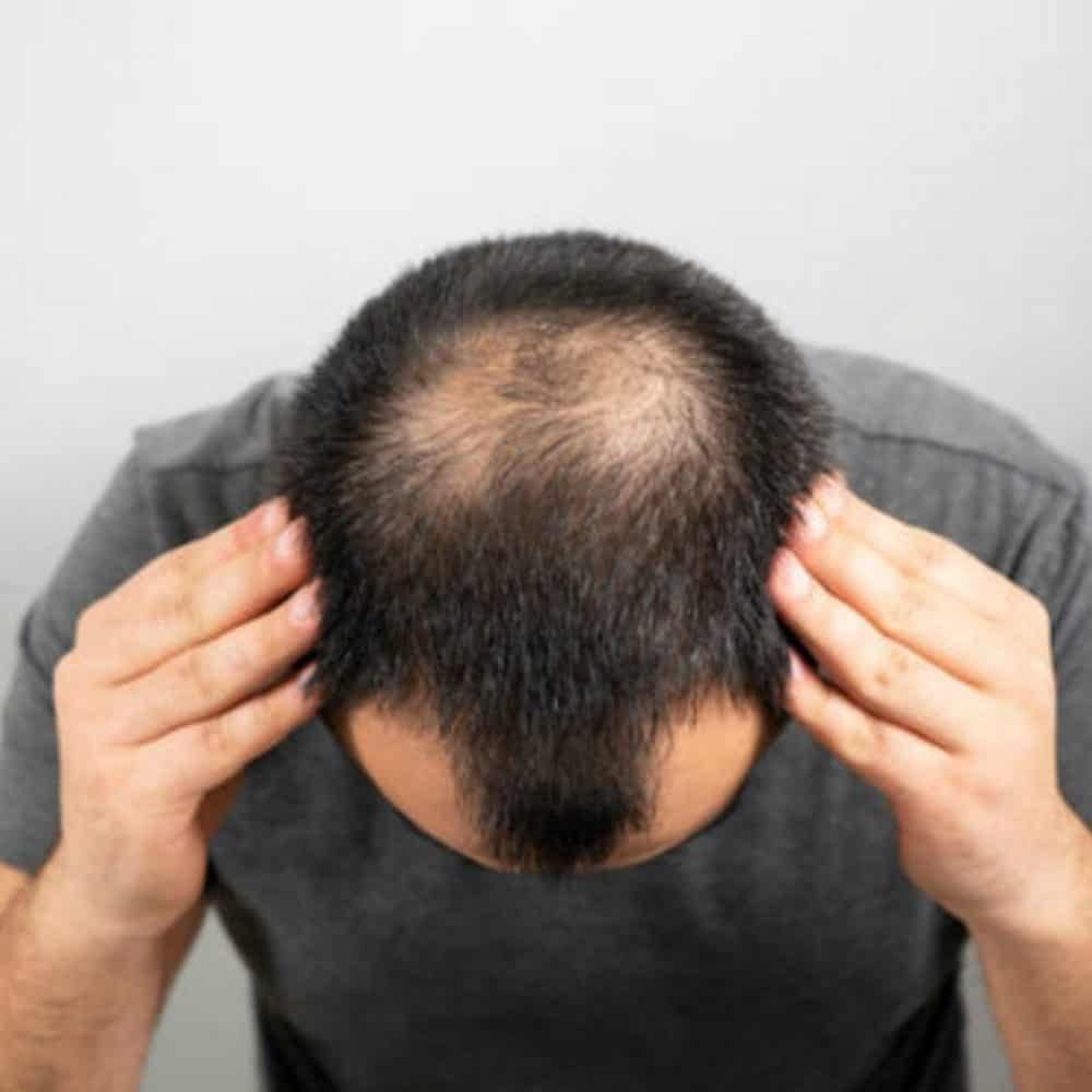 Norwood Scale: Popular Stages of Hair Loss in Men